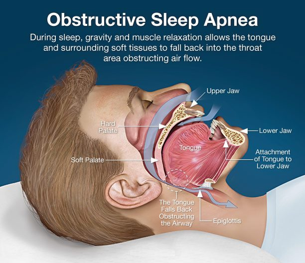 sleep apnea treatment nj
