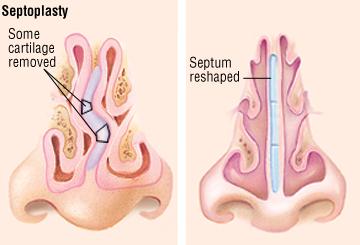 septoplasty-surgery-nj-bergen-county