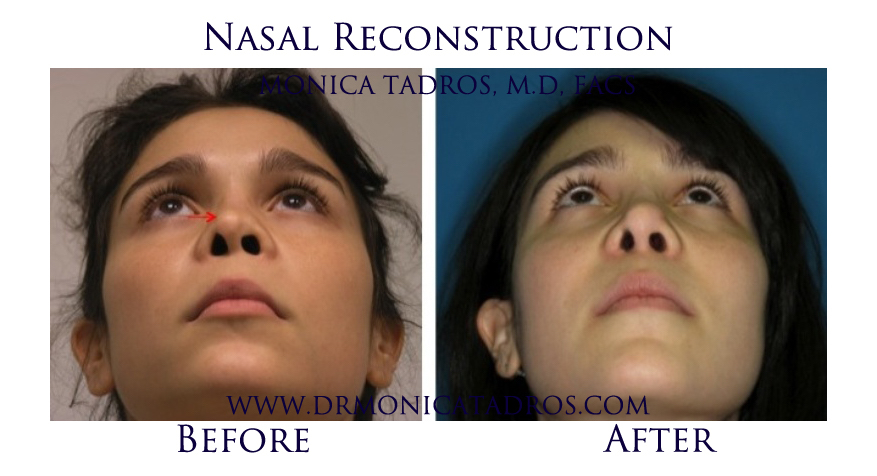 Nasal Reconstruction NJ & NYC before after photo