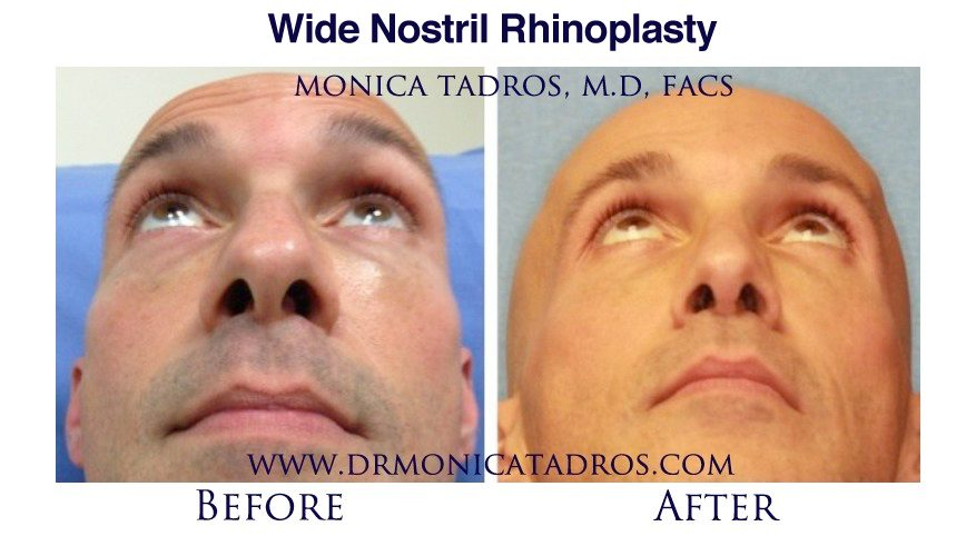 wide-big-nostril-surgery-englewood-bergen-county-nj