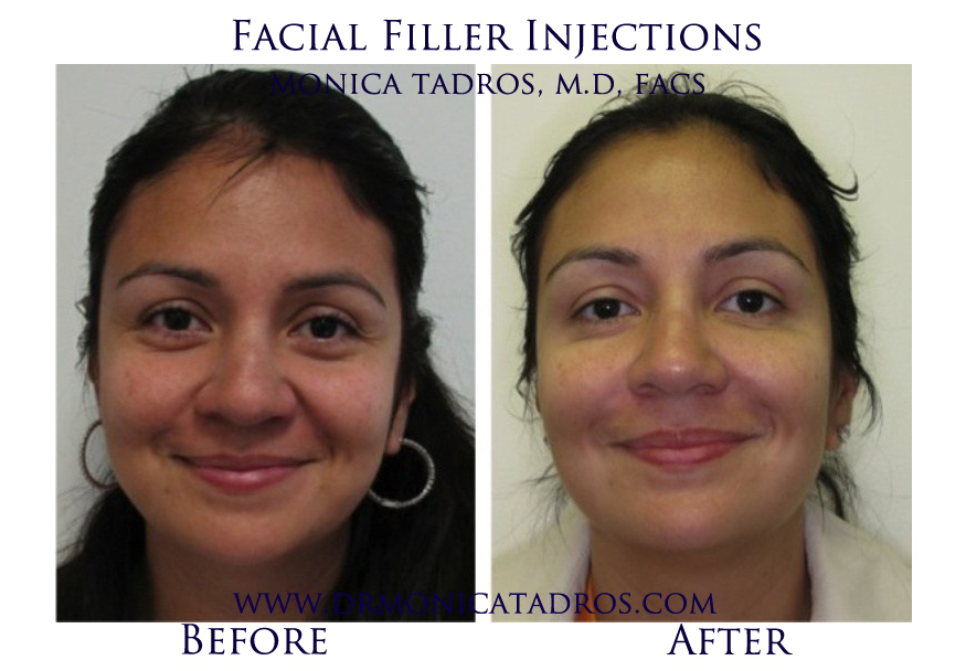 Facial-Filler-Injections-NJ-before-after-photo-007