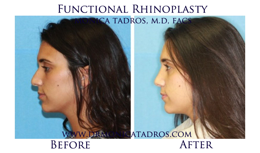 Functional-Rhinoplasty-NJ-before-after-photo-006
