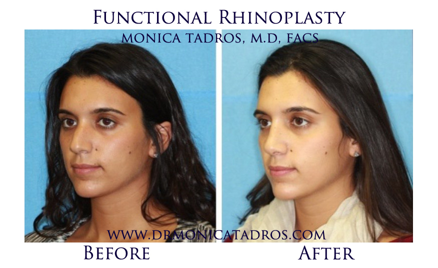 Functional-Rhinoplasty-NJ-before-after-photo-007