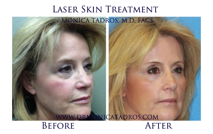 Laser-Skin-Treatment-NJ-before-after-photo-001