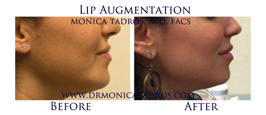 Lip-Augmentation-NJ-before-after-photo-004