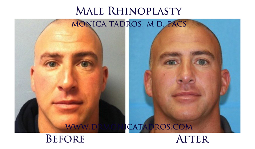 Male-Rhinoplasty-NJ-before-after-photo-001-1