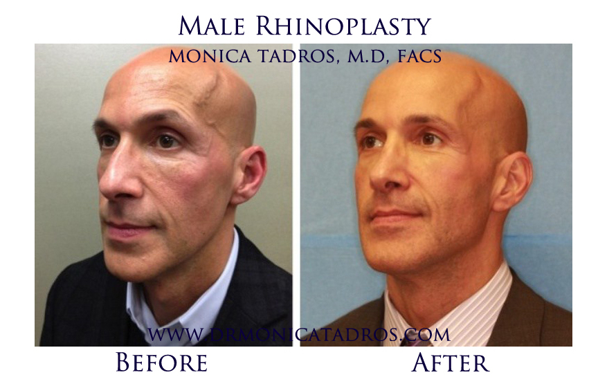 Male-Rhinoplasty-NJ-before-after-photo-0010-1