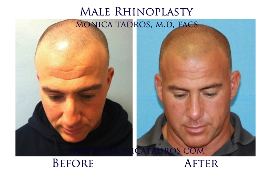 Male-Rhinoplasty-NJ-before-after-photo-003