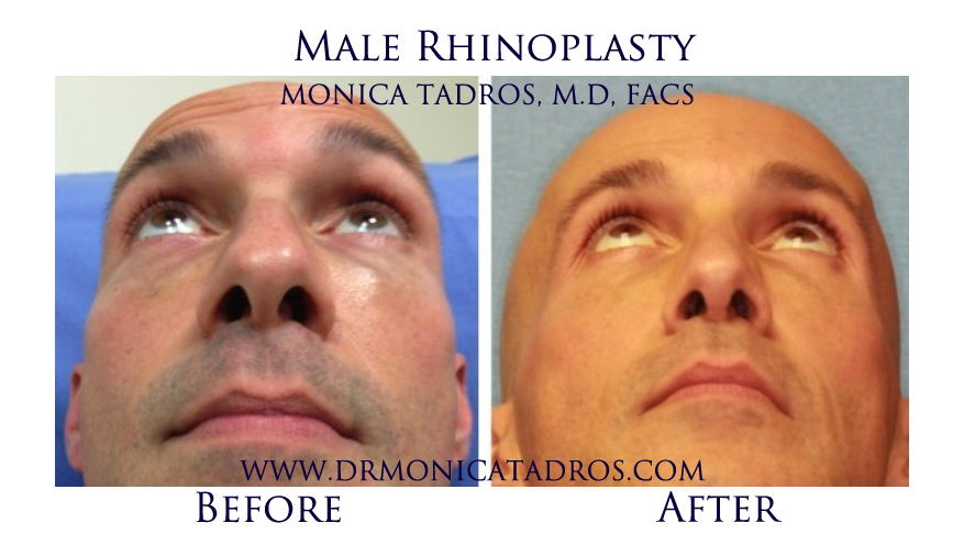 Male Nose Job Before & After Photo