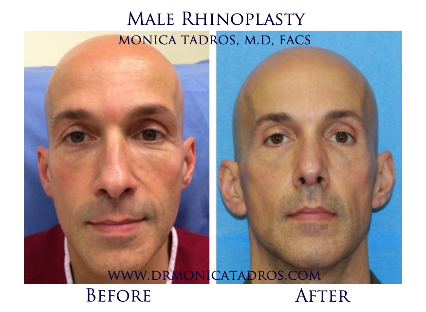 Male-Rhinoplasty-NJ-before-after-photo-006-1
