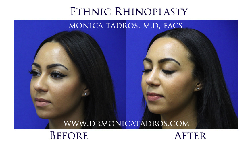 ethnic-rhinoplasty-before-after-nj-10