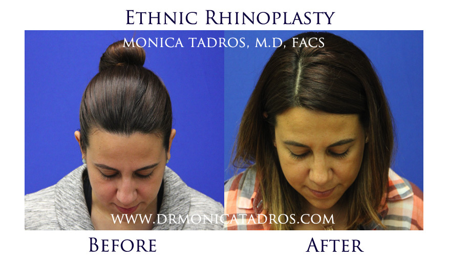 ethnic-rhinoplasty-before-after-nj-7