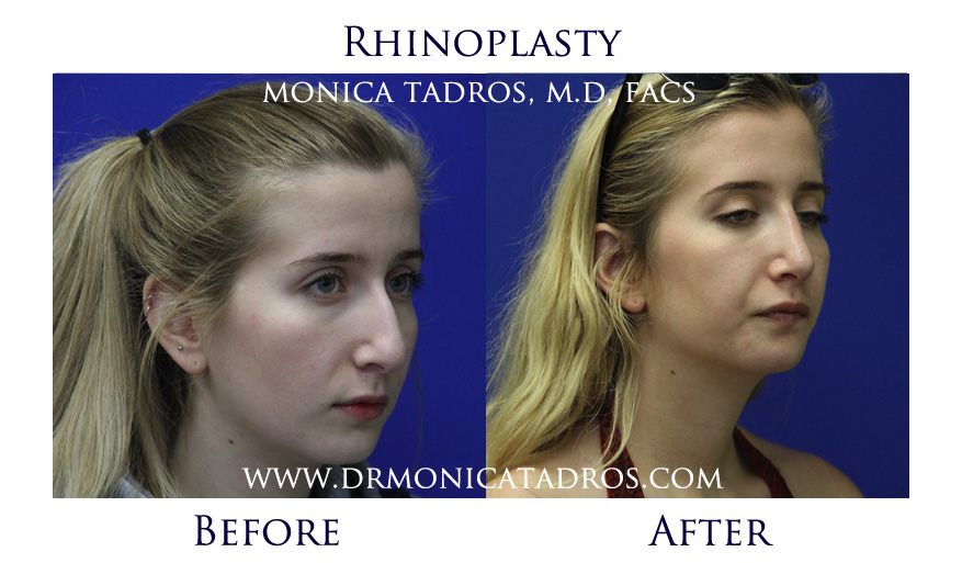 rhinoplasty-before-after-nj-3