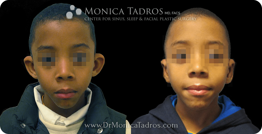 Before & After Otoplasty in NJ & NYC